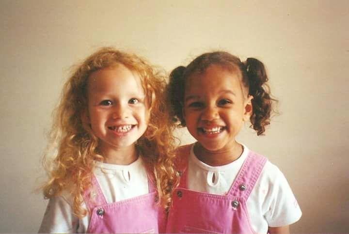 2. Близначките с различен цвят на кожата