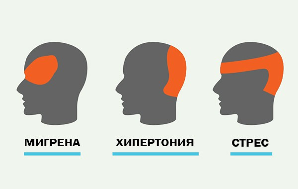 Как да облекчите главоболието за 5 минути без никакви хапчета