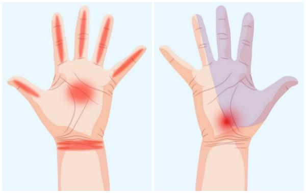 Какво разкриват ръцете за здравето ви